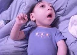 اختلالی که موجب مرگ نوزاد میشود +دلایل ابتلا و روش درمان آنانسفالی