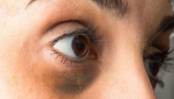 چگونه حلقههای تاریک دور چشم را درمان کنیم؟