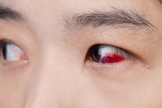 اختلال خطرناک چشمی که در هر سنی اتفاق می افتد + علائم و راه های درمان جداشدگی شبکیه