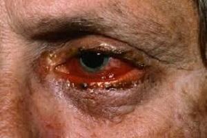 بیماری نادر و خطرناک پوستی به نام سندرم استیونز + راههای تشخیص و درمان