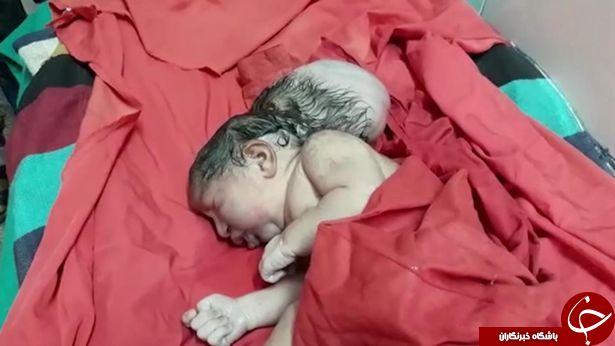 تولد نوزاد سه سر در بیمارستانی در هند + تصاویر///