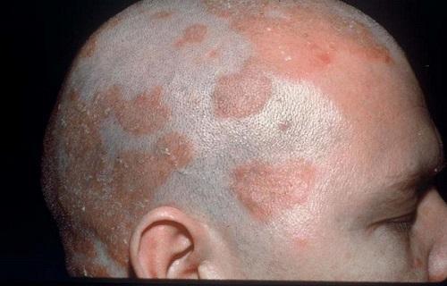 سبورئیک درماتایتیس/التهاب پوستی