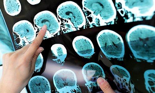 نشانههای پنهانی از بیماری که خبر از گوشه نشینیتان میدهد + علائم بیماری ام اس