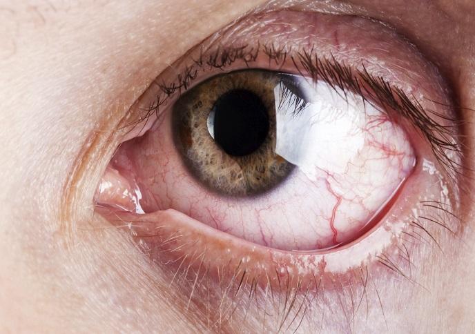 وقتی تغییر رنگ چشم زنگ خطر ابتلا به یک بیماری خطرناک را به صدا در میآورد
