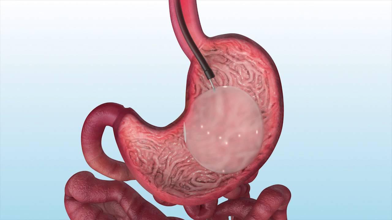 التهابات و عفونت هایی که در لایه مخاطی بدن موجب اختلالاتی می شوند  /گاستریت و راه های درمان آن