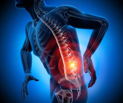 اختلالاتی که موجب از پا در آوردن فرد می شود /سیاتالژی و راه های درمان آن