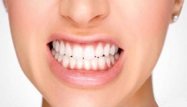 از کجا بفهمیم دندان قروچه داریم؟ +روش های طبیعی درمان دندان قروچه