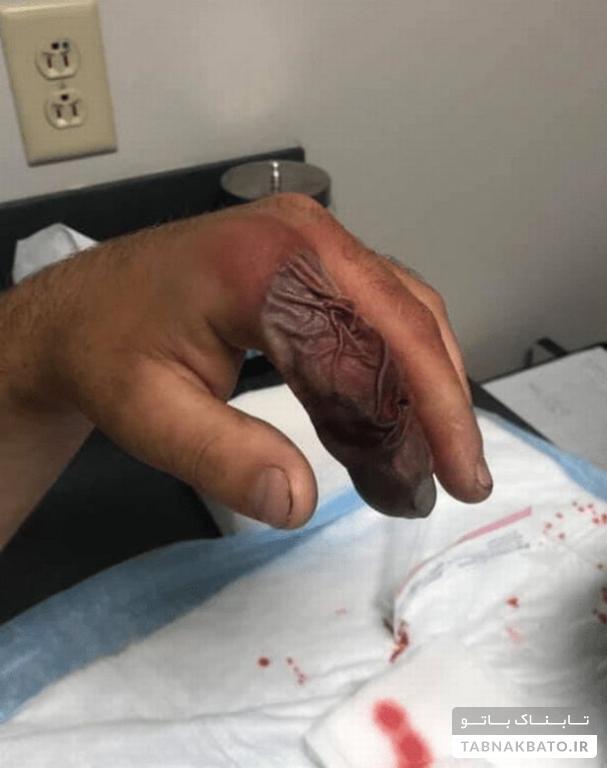 تغییر عجیب انگشت دست یک مارگزیده