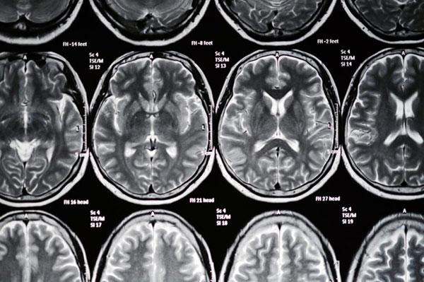 «ریسک فاکتور»های سکتهی مغزی، که میتوانید کنترلشان کنید