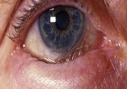 وجود اختلالاتی در عملکرد خوب چشم /انتروپیون