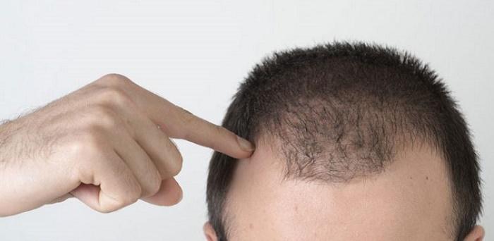 ۵ نکته برای راحت شدن از شر ریزش مو