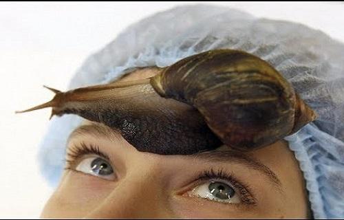 ممنوعیت حلزون درمانی در آرایشگاه ها/ بلاهایی که زالو درمانی غیراستاندارد سرتان میآورد