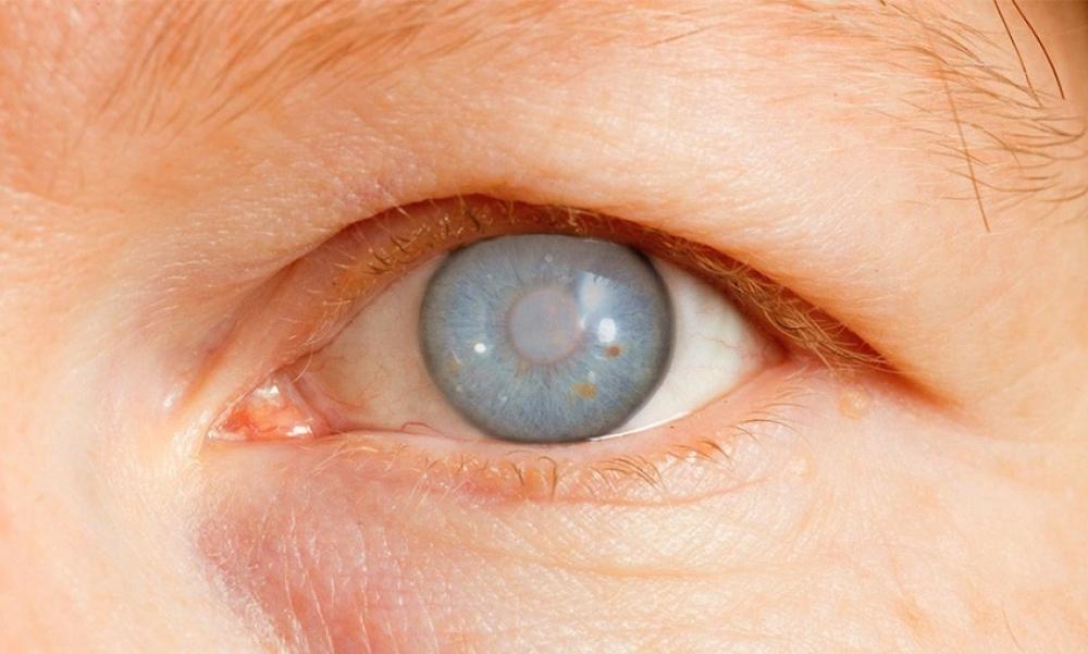 گلوکوم؛ آسیب جدی که با بالا رفتن فشار چشم خود را به نمایش میگذارد + راه درمانی طب سنتی