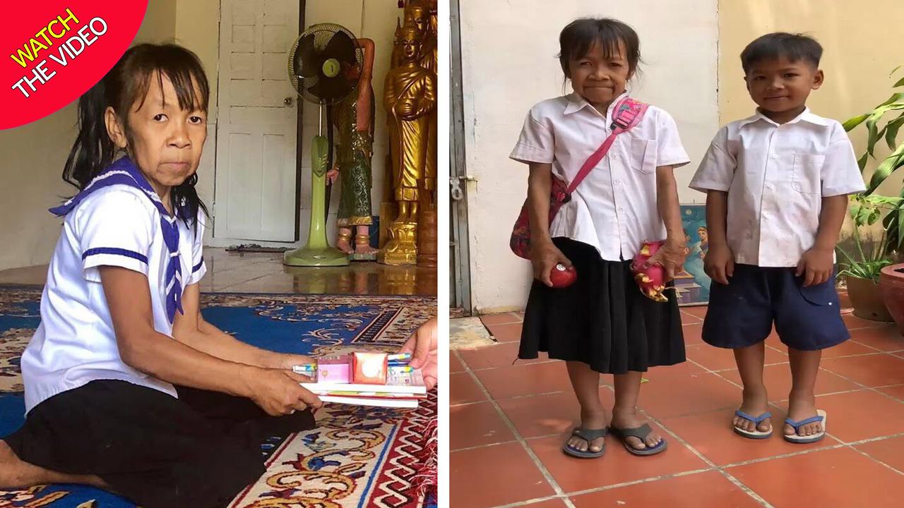 پیری عجیب و باورنکردنی صورت دختر ۱۰ ساله کامبوجی! + فیلم
