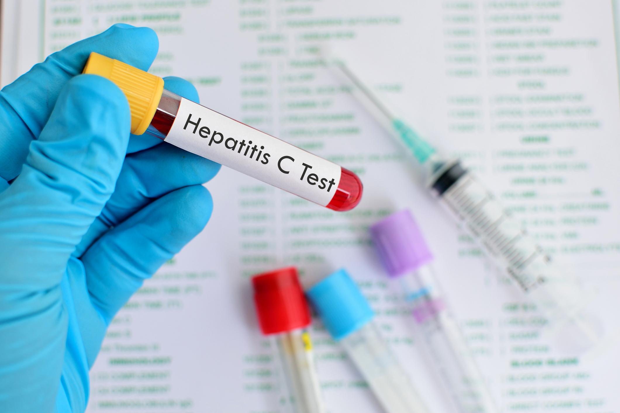 درمان ۱۰ درصد از مبتلایان به هپاتیت سی در مشهد