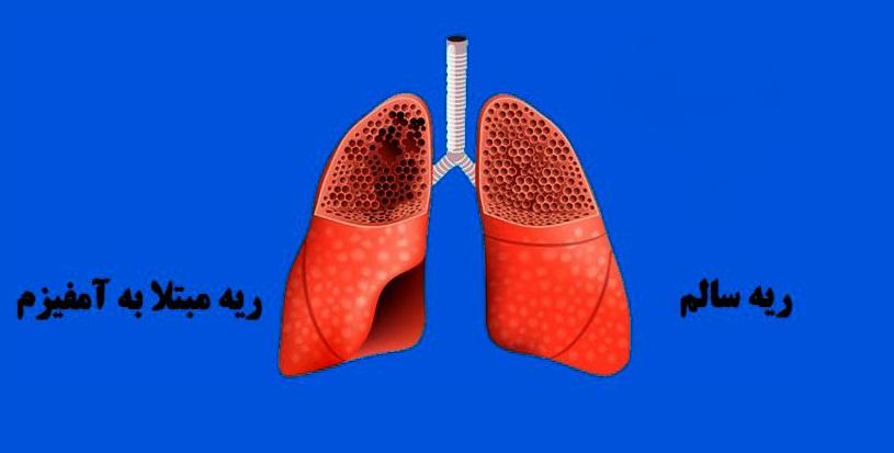 بومی سازی یک روش درمانی برای بیماران ریوی/ نفس بیماران آمفیزم با این روش درمانی باز خواهد شد