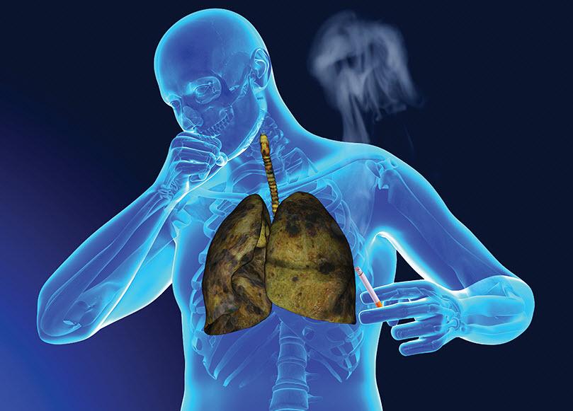 کشندهترین بیماریها را بشناسید/  ۱۰ بیماری کشنده در جهان را بشناسید