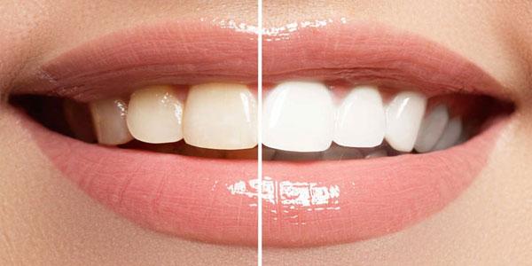 افرادی که از معده درد رنج میبرند/قبل و بعد پرواز چی بخوریم/رد کش جوراب که موجب دردسر میشود/چگونه یک کفش طبی مناسب بخریم؟/زیبایی دندانها موجب لبخند زیبا میشود