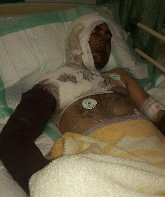 اسیدپاشی پدری روی پسر و عروسش در خلخال+عکس