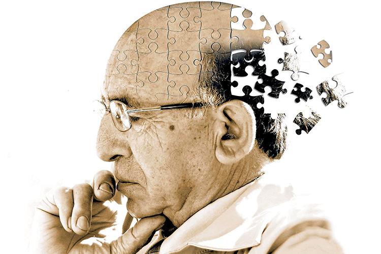 داروهای آلزایمر با مدلهای مغزی جدید بهتر هدفگیری میکنند