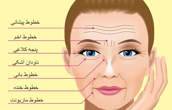 خطوط چهرهتان چه میگویند؟