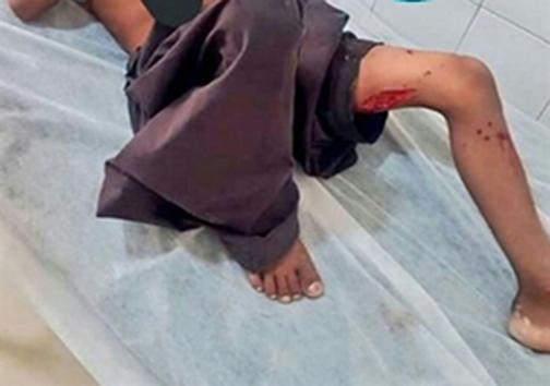 حمله مجدد گاندوها به یککودک در چابهار