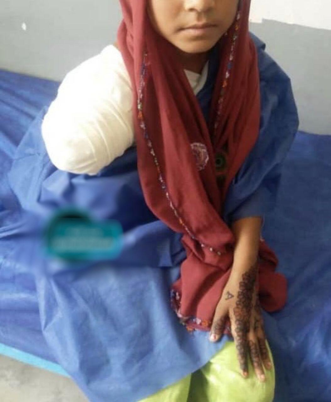 تصویری از آخرین وضعیت دختری که به خاطر گاندو دستش قطع شد!