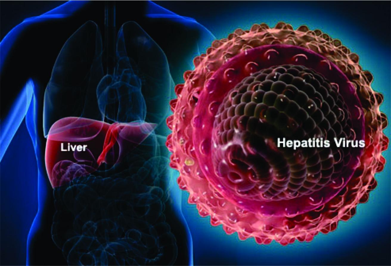 هپاتیت؛ یکی از ۴ بیماری عفونی خطرناک جهان/ معتادان تزریقی ناقلان اصلی هپاتیت c در جامعه