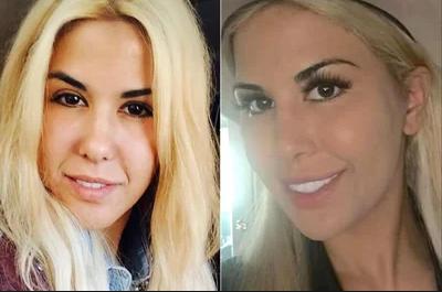 چرا زنان آمریکایی جراحی پلاستیک میکنند تا شبیه ایوانکا ترامپ شوند؟