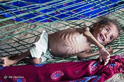 کودک یمنی؛ قربانی جنگ