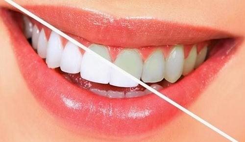 خوراکی هایی که مثل مسواک دندانهایتان را تمیز میکنند +لیست مواد غذایی مفید برای سلامت دهان و دندان
