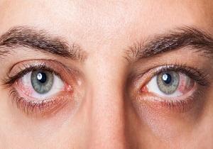 ساعت ۲۱/ عارضهای که موجب التهابات عنبیه چشم میشود