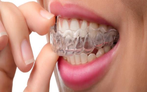 ساعت20///قروچه دشمن بامزه ی دندان ها را خوب بشناسید