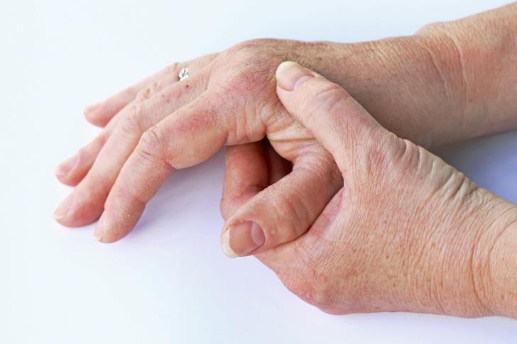 مهمترین هشدارهای بدن که از بیماریهای خطرناک خبر میدهند + تصاویر