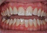 باشگاه خبرنگاران -علت وجود لکههای سفید روی دندانها چیست؟