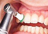 باشگاه خبرنگاران -جرمگیری چه تأثیری بر ساییدگی دندانها دارد؟