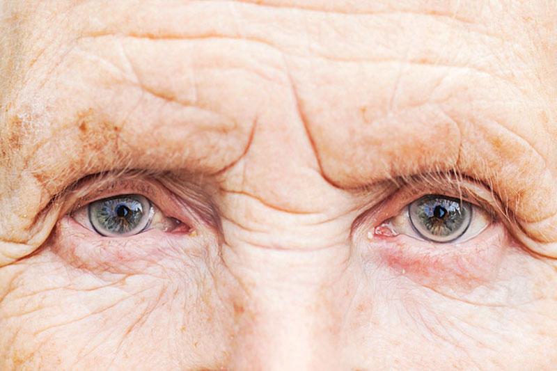ماکولا دشمن خطرساز چشمی و راه های درمان آن