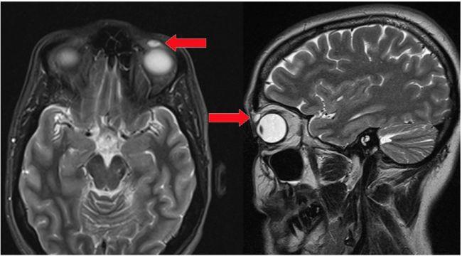عجیبترینهای دنیای پزشکی / از عفونتیکه مغز را میبلعد تا انگلی که در ستون فقرات پیدا شد