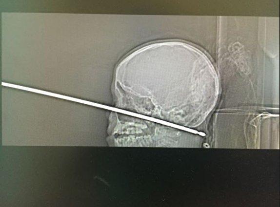 باشگاه خبرنگاران -از عفونتیکه مغز را میبلعد تا قاشقی که یکسال در مری جا خوش کرد