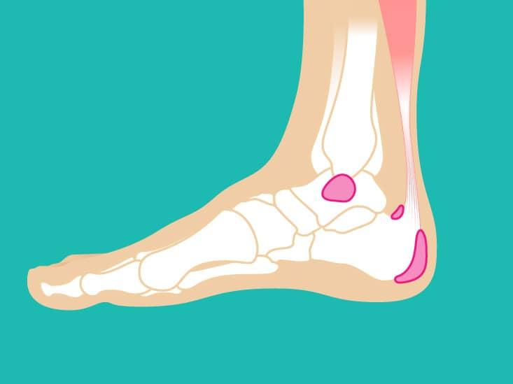 چه کار کنیم تا درد پاشنه پا به سراغمان نیاید؟ ارتباط درد پاشنه پا با ایستادنهای طولانی مدت