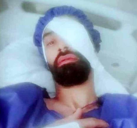 فوتبالیست ملی پوش ایرانی نابینا شد + عکس