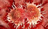 باشگاه خبرنگاران -تاثیر منفی آنتی بیوتیکها بر درمان سرطان