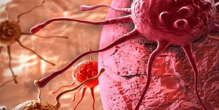 کدام زنان در معرض سرطان «تخمدان» هستند؟