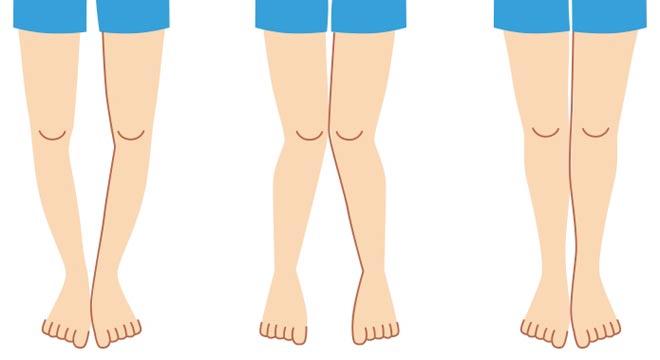 کمتحرکی ساختار قامتی دانش آموزان را هدف قرار میدهد / شایعترین ناهنجاریهای اسکلتی در نوجوانان