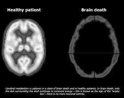 باشگاه خبرنگاران -مراحل تایید مرگ مغزی چگونه است؟
