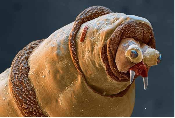 چندشآورترین تصاویر از دنیای میکروسکوپی + تصاویر+ ۱۸