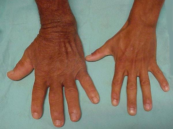 // گزارش ساعت ۷ صبح/// نادرترین بیماریهای عجیب در جهان کدامند؟ + تصاویر
