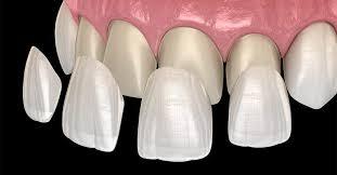 کامپوزیت و لمینت چه بلایی بر سر دندانها میآورد؟