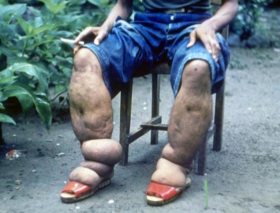 گزارش ۷ صبح///// وحشتناکترین عفونتهای انگلی/ از انگل فلج کننده تا مهمان ناخوانده ای که مغز را میخورد