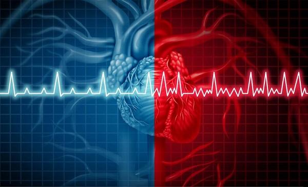 هوش مصنوعی میزان خطر سکته قلبی را تشخیص میدهد